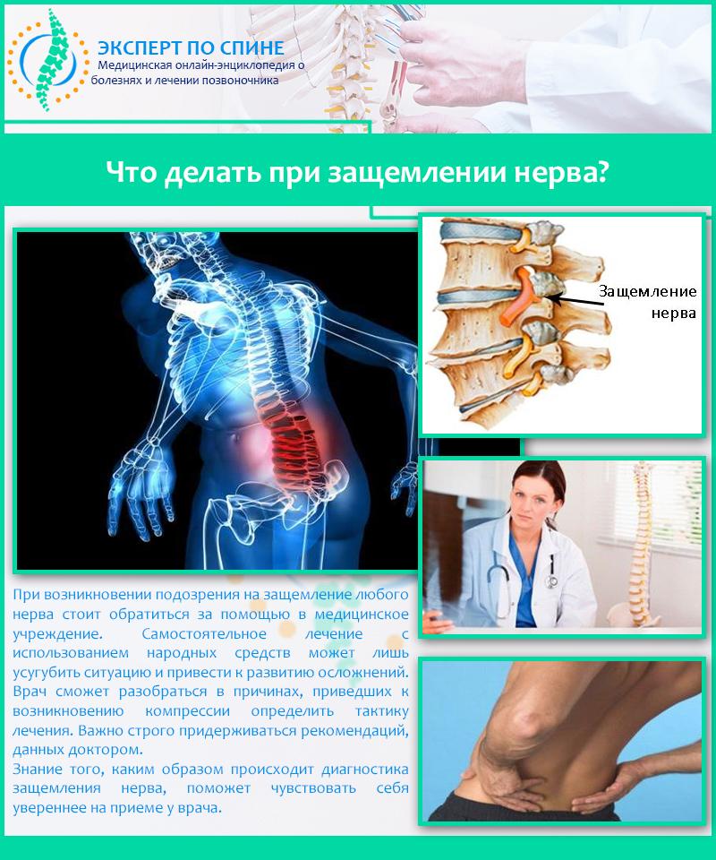 Что делать если ущемление нерва позвоночника лечение