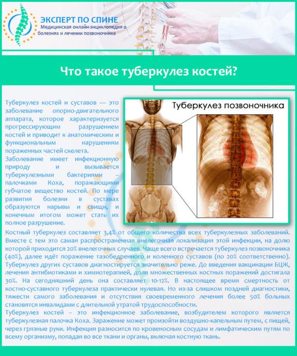 Что такое туберкулез костей