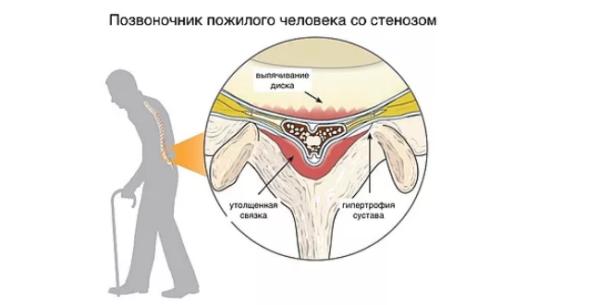Дегенеративный стеноз - следствие естественного процесса старения позвоночника