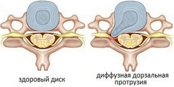 Дорзальная диффузная протрузия