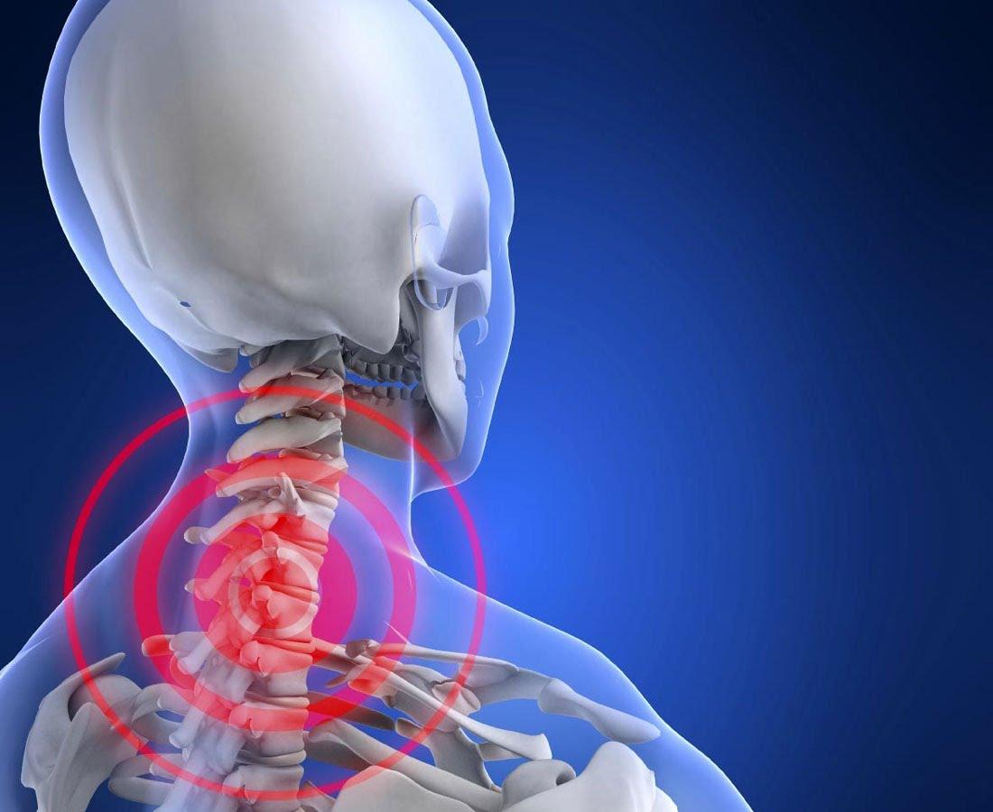Что принять при симптомах шейного остеохондроза