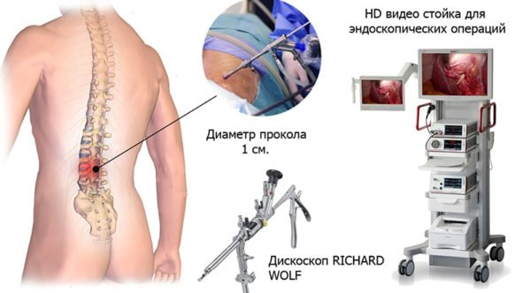 Эндоскопическая операция по удалению грыжи позвоночника
