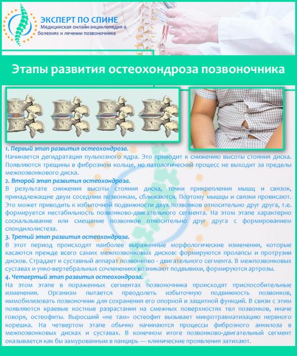 Этапы развития остеохондроза позвоночника