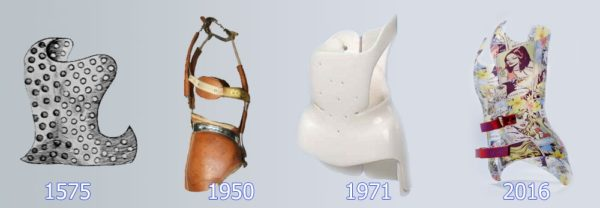 Эволюция корсетов при лечении сколиоза