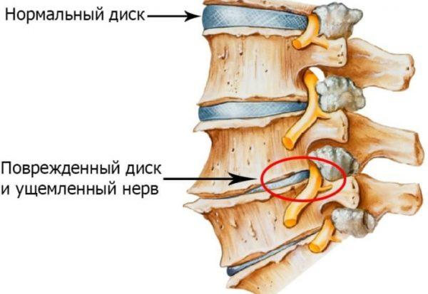 Остеохондроз шейного отдела характеризуется ускоренным старением межпозвоночных дисков, а впоследствии – тел шейных позвонков