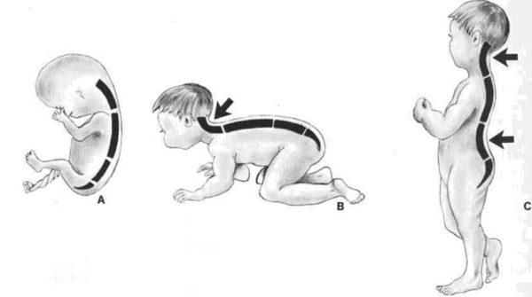 Формирование шейного лордоза у ребенка