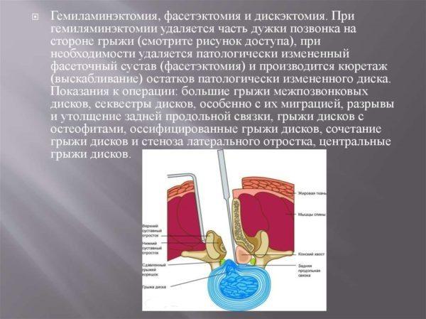 Гемиламинэктомия, фасетэктомия и дискэктомия