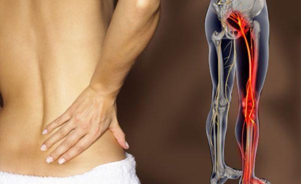 Главный признак ишиаса – сильная боль в области спины