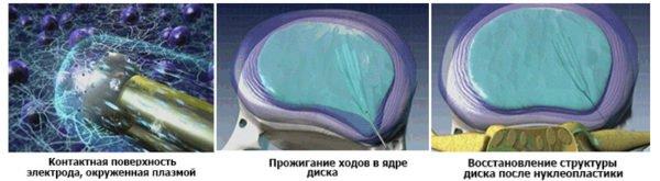 Холодноплазменная нуклеопластика
