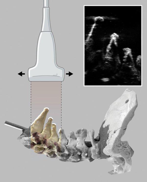 Иллюстрация показывает, как ультразвуковой луч отражается от костных поверхностей нижних шейных позвонков