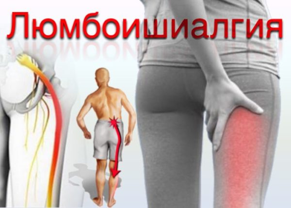 При люмбоишиалгии боль отдает в ногу