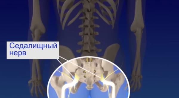 Ишиалгия - болевой синдром, появляющийся вследствие сжатия или раздражения седалищного нерва