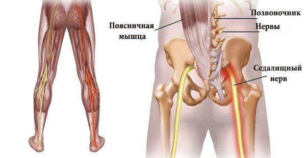 Ишиас — заболевание, связанное с защемлением и воспалением седалищного нерва в пояснично-крестцовом отделе