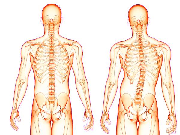 Комплекс упражнений при сколиозе: как убрать искривление позвоночника