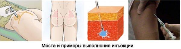 Как делать укол внутримышечно