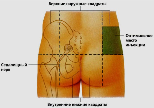 Как правильно сделать выбор места для укола