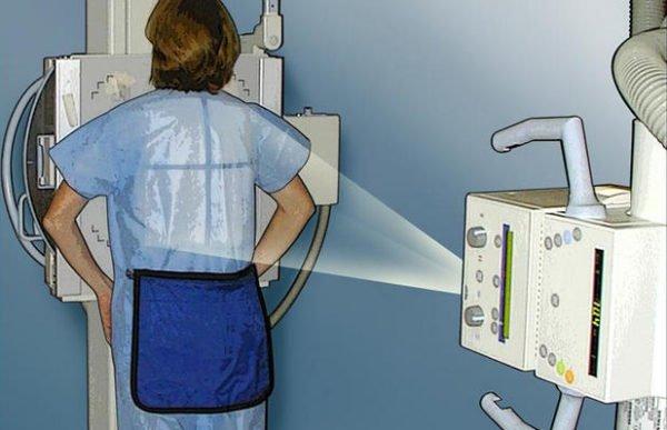 Как проводят рентген