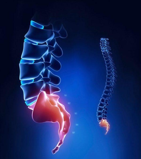 Кокцигодиния представляет собой состояние, при котором наблюдается стойкая боль в области копчика
