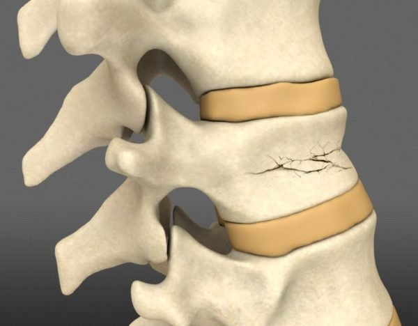 Компрессионный перелом позвоночника может спровоцировать травматический шок