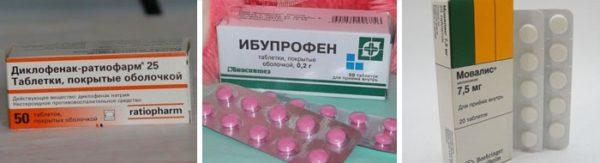 Лекарства, снимающие боль при воспалении седалищного нерва
