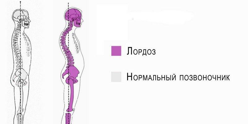 Выпрямление физиологического лордоза шейного отдела
