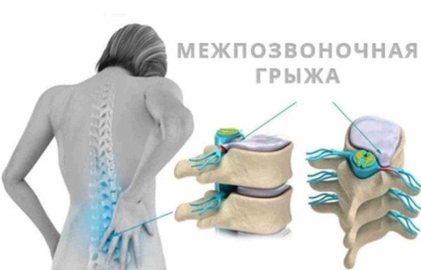 Выпячивание грыжи в спинномозговой канал способствует сдавливанию спинного мозга, вызывая этим онемение или парализ конечностей