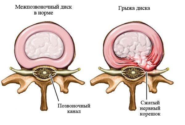 Межпозвонковая грыжа диска