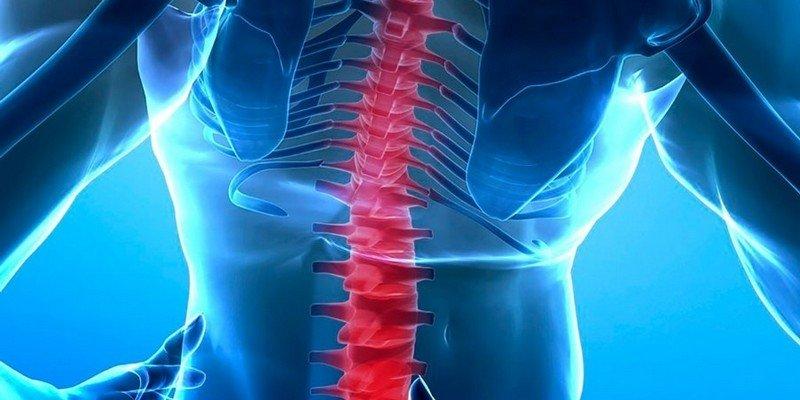 Миелит (воспаление) спинного мозга. Поперечный миелит спинного мозга