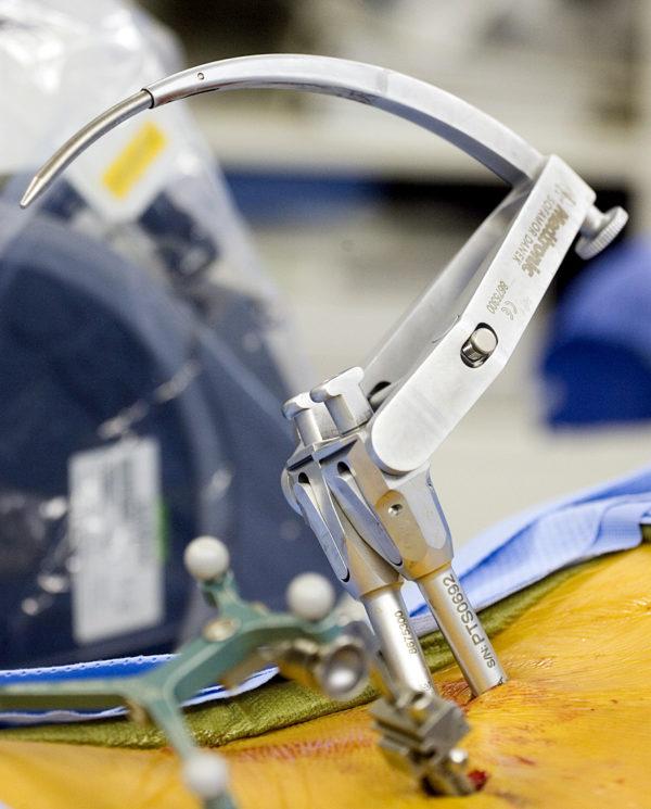 Микродискэктомия грыж позвоночника