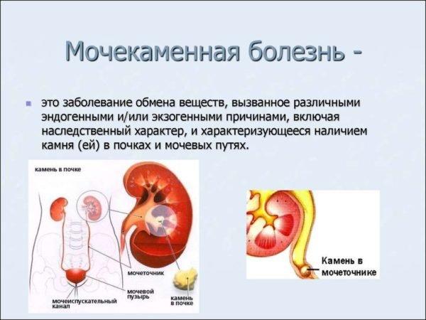 Мочекаменная болезнь способна спровоцировать люмбалгию
