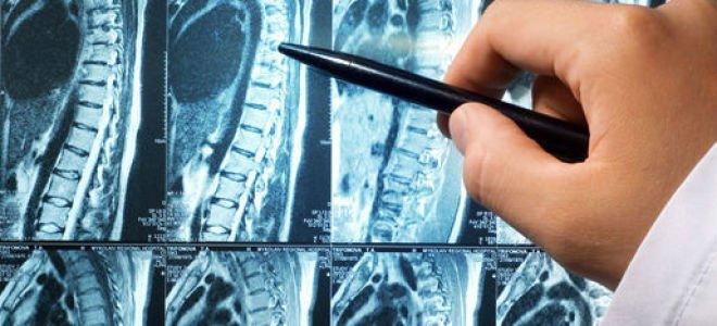 Мрт шейного и грудного отдела позвоночника что показывает