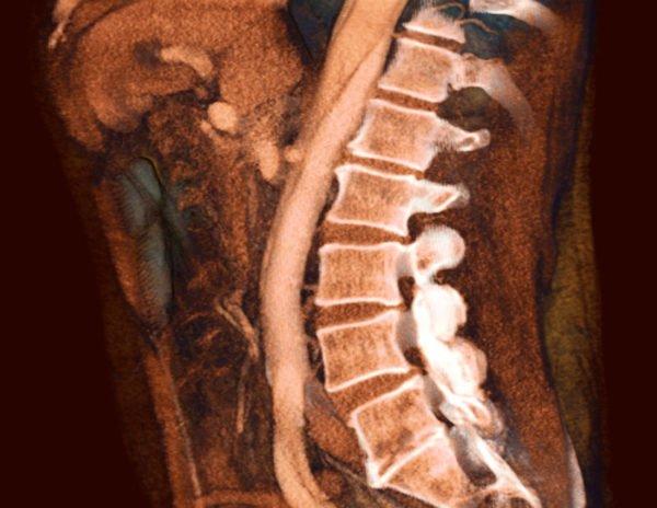 МРТ остеохондроза