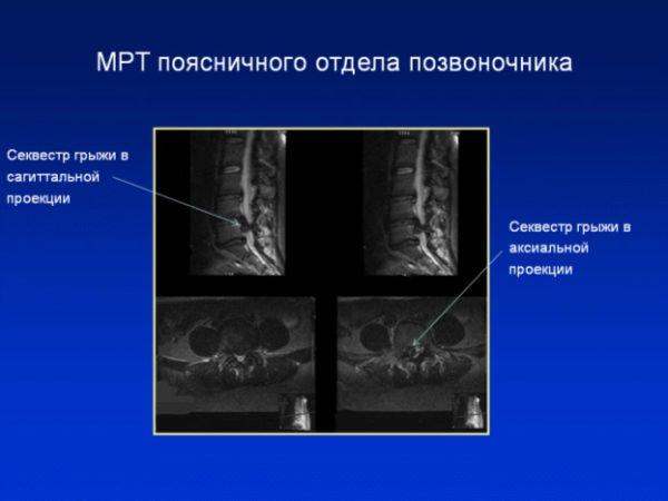 МРТ поясничного отдела позвоночника