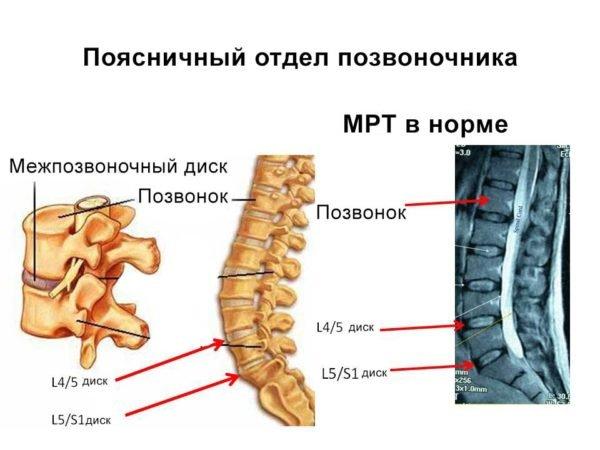 МРТ поясничного отдела здорового позвоночника