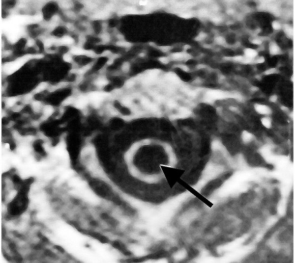 МРТ позвоночника и спинного мозга