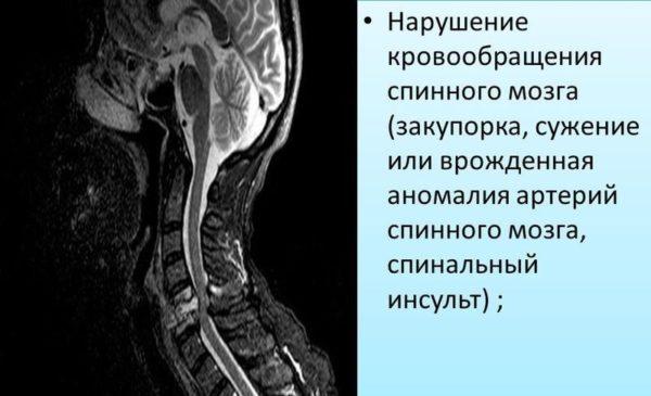 Нарушение кровообращения спинного мозга (закупорка, сужение или врожденная аномалия артерий спинного мозга, спинальный инсульт)