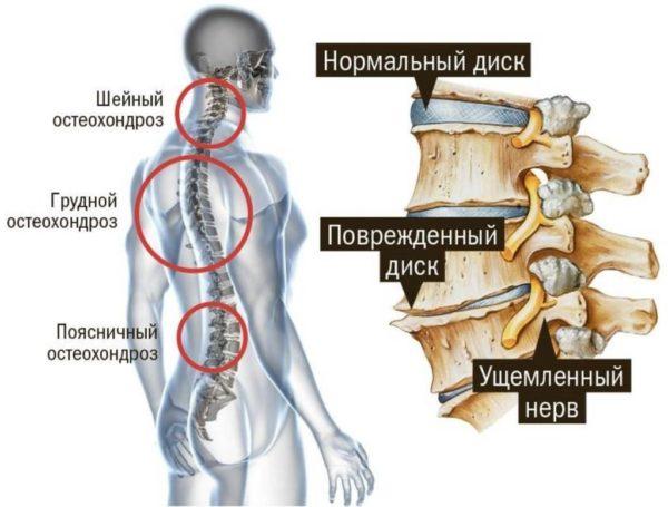 Насколько опасен остеохондроз позвоночника