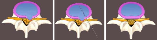 Нуклеопластика – это воздействие непосредственно на ядро диска (nucleus-ядро, plastika – изменение)