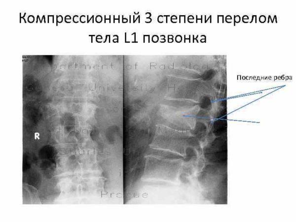 Компрессионный 3 степени перелом тела L1 позвонка