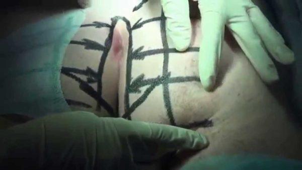 Операция на иссечение кисты копчика