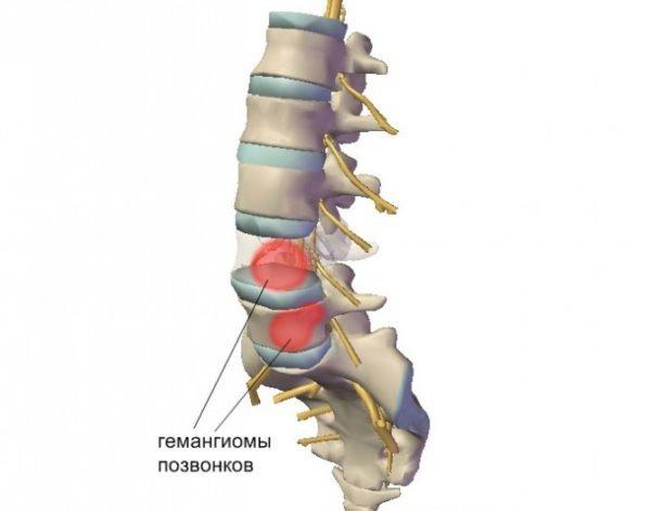 Гемангиома - одна из разновидностей опухолей позвоночника