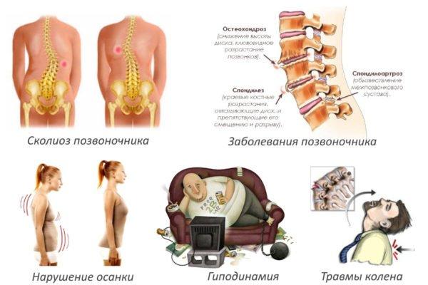 Основные причины заболевания