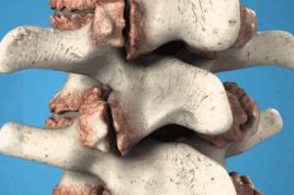 Остеофиты поясничного отдела - лечение