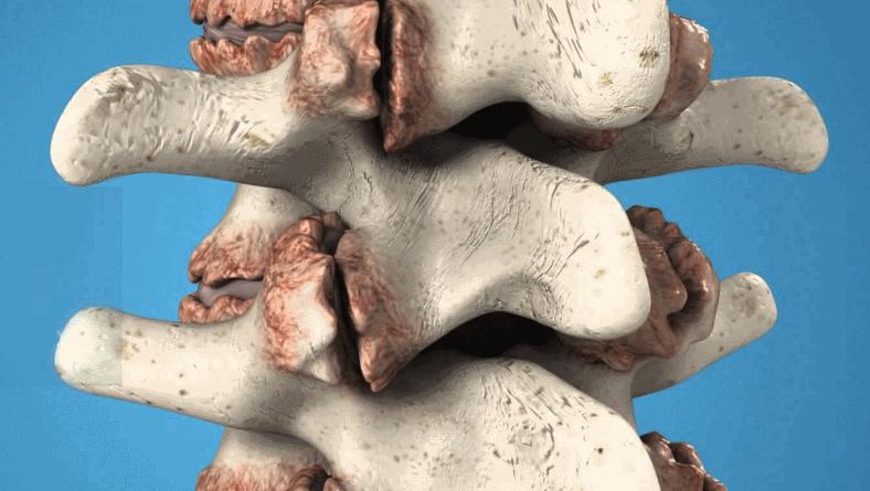 Остеофит лечение симптомы причины профилактика