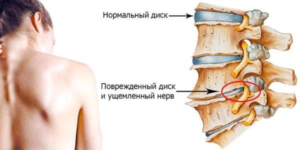 Схема лечения грудного остеохондроза фото 984