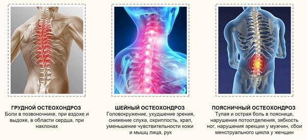 Остеохондроз разных отделов позвоночника