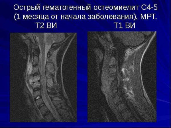 Остеомиелита позвоночника