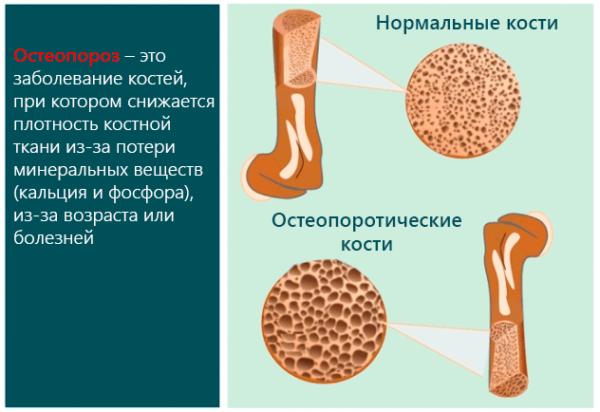 Остеопороз – это заболевание костей, при котором снижается плотность костной ткани