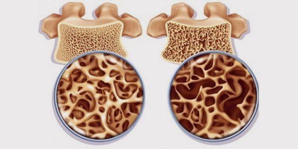 Остеопороз — опасный недуг, который в народе также известен как болезнь хрупкости костей