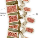 Лечение остеопороза у женщин возможности современной медицины